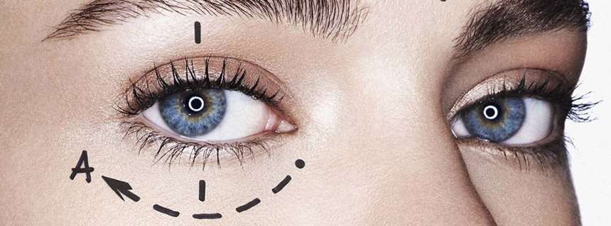 non-surgical eyelift